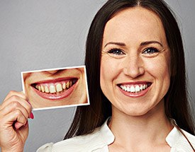 Woman holdin photo of smile before teeth whitening