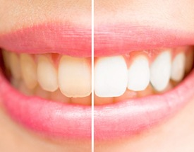 before and after picture of teeth whitening