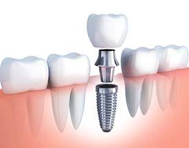 Model of implant supported crown