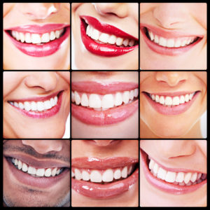 Invisalign clear aligners straighten teeth discreetly. Dentistry at Hickory Flat in Canton uses Invisalign for mild to moderate orthodontic issues.