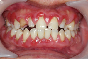 Your dentist in Canton uses laser dentistry for increased patient comfort.