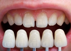 A row of veneers compared to natural teeth.
