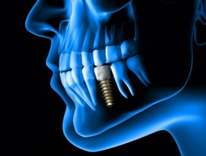 digital image of dental implant from dentist