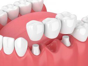 dental bridge replacing a missing bottom tooth